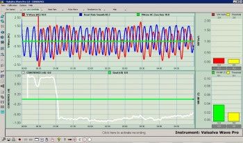 Valsalva Wave And Heart Rate Synchrony And Phase Correlation Captured With Valsalva Wave Pro